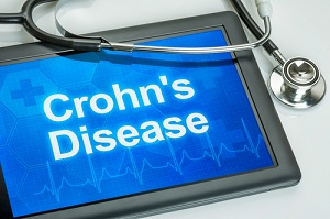 Qualifying for Social Security Disability with Crohn's Disease