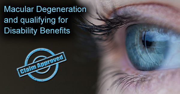 Macular Degeneration and qualifying for Disability Benefits